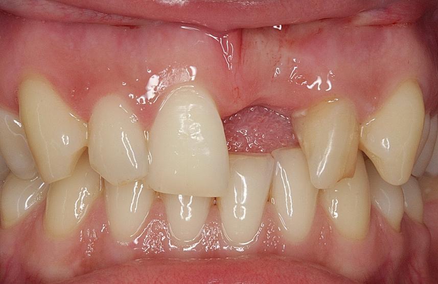 отсутствующий зуб
