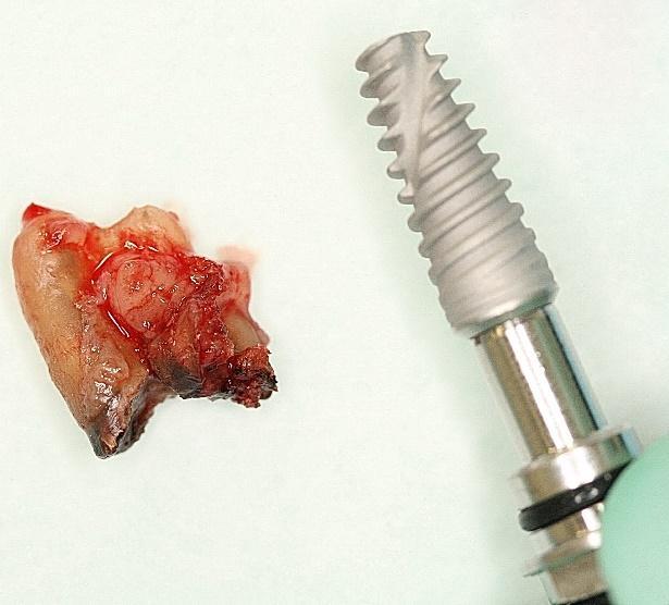 Непосредственная имплантация