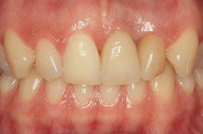 Имплантация зубов - фото до и после