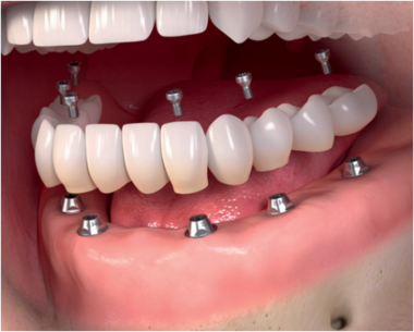 цена имплантации зубов