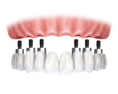 цена зубных имплантов