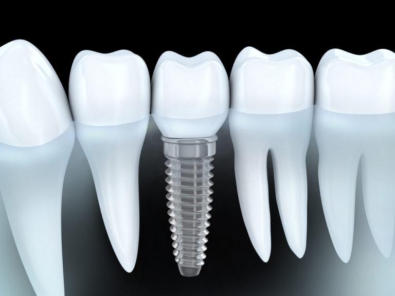 Как выбрать имплантат для зубов 1