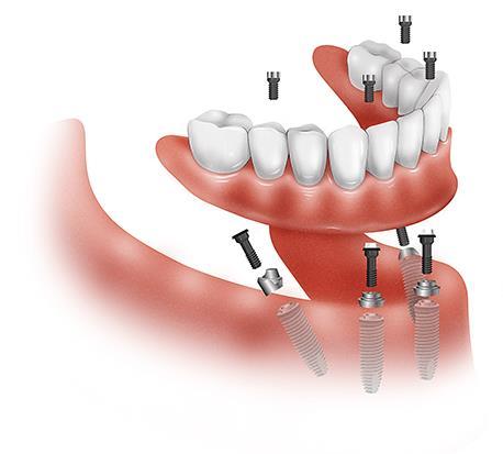 Как выбрать имплантат для зубов 2