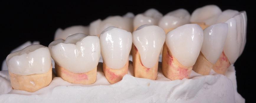 Виды зубных коронок 5
