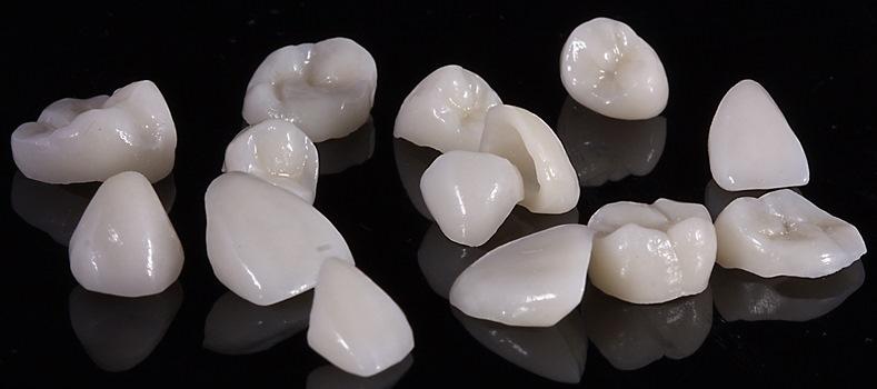 Виды зубных коронок 4