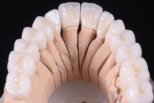 Виды зубных коронок 6