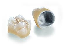 Виды зубных коронок 3