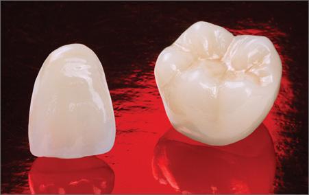 Виды зубных коронок 7