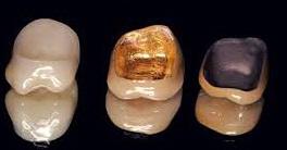Виды зубных коронок 1