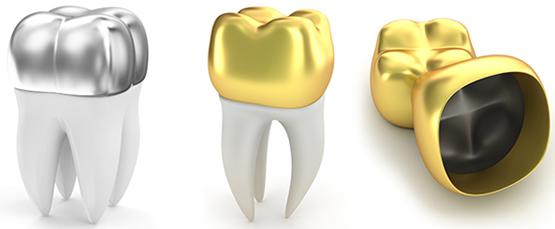 Виды зубных коронок 2
