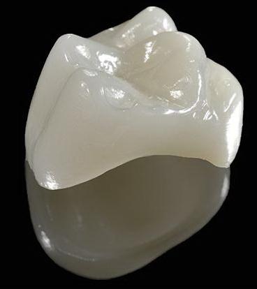 Виды зубных коронок 8